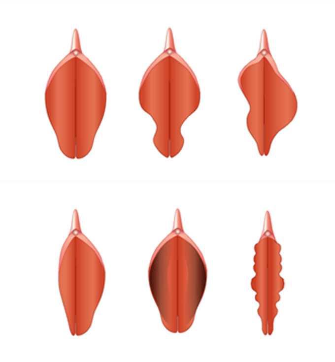 علت نامتقارن بودن لبه های واژن